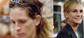 Before-After-Julia-Roberts